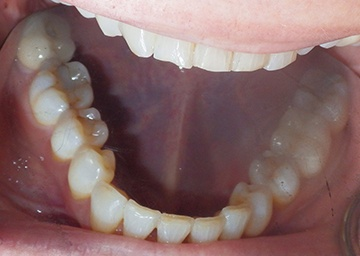 Invisalign Gallery 1 after