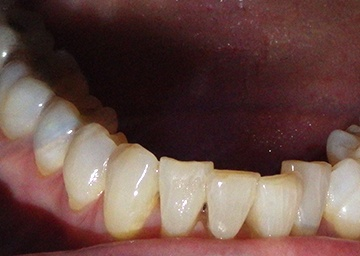 Invisalign Gallery 1 before