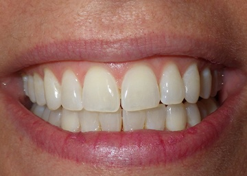 Invisalign Gallery 3 after