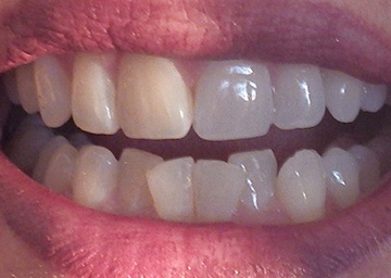 Invisalign Gallery 3 before