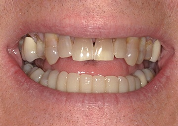 smile makeover gallery 8 before